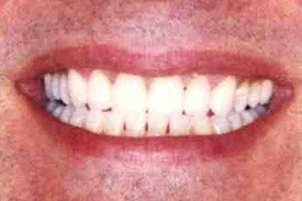 Man's perfectly aligned white smile