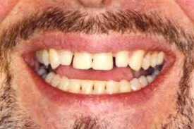 Man's unevenly spaced teeth