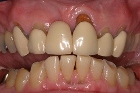 Smile with sever dental damage and discoloration