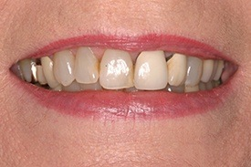 Closeup of darkly colored teeth
