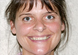Woman's smile after treatment