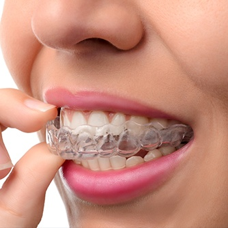Closeup of person placing Invisalign tray