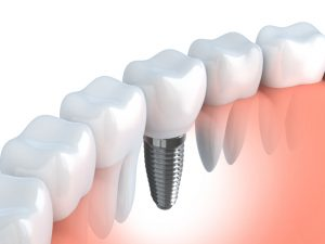 Dental implants in Farmington replace missing teeth better than other prosthetics. Dr. Leslie Metzger recommends implants to patients in good oral health.