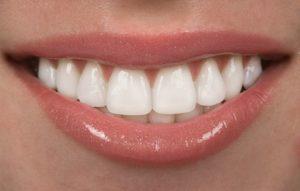 A white smile.