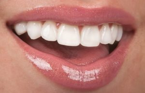 Beautiful smile with pristine porcelain veneers